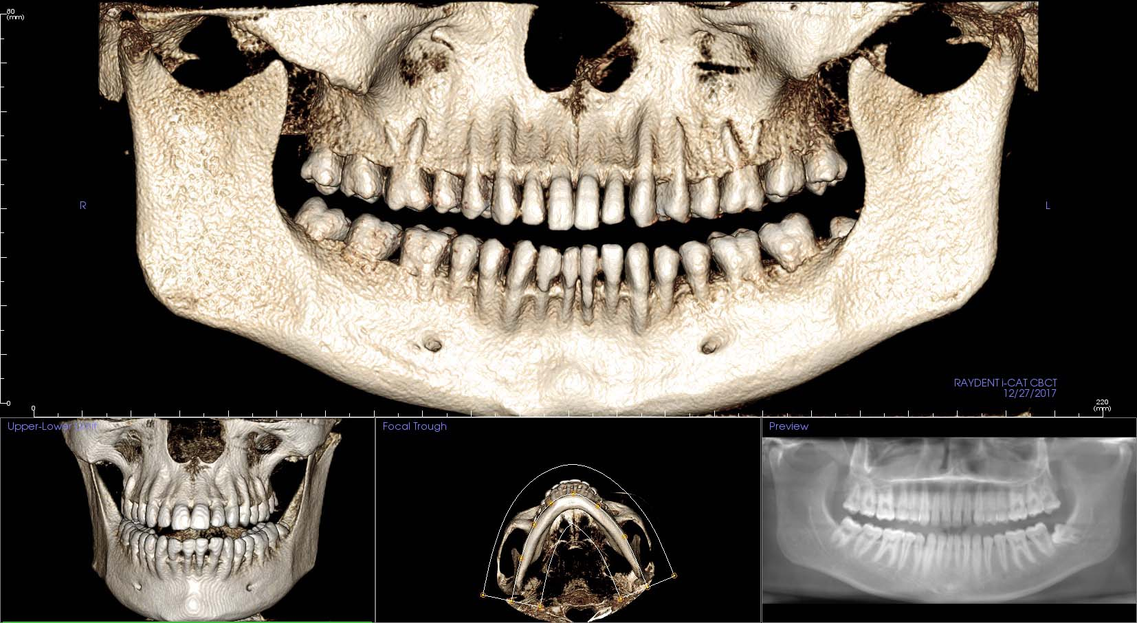 Raydent i-CAT Dental and Maxillofacial Imaging Centre